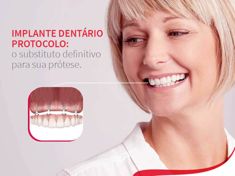 Mulher sorrindo mostrando implante protocolo Post Mídia Digital Dra. Tânia Rodrigues cliente E-clínica Marketing Digital dentista