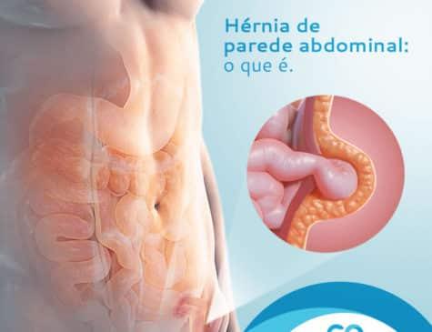 Ilustração de hérnia abdominal Postagem de Mídia Social Dra. Cinara Oliveira cliente E-clínica Marketing Digital para médicos