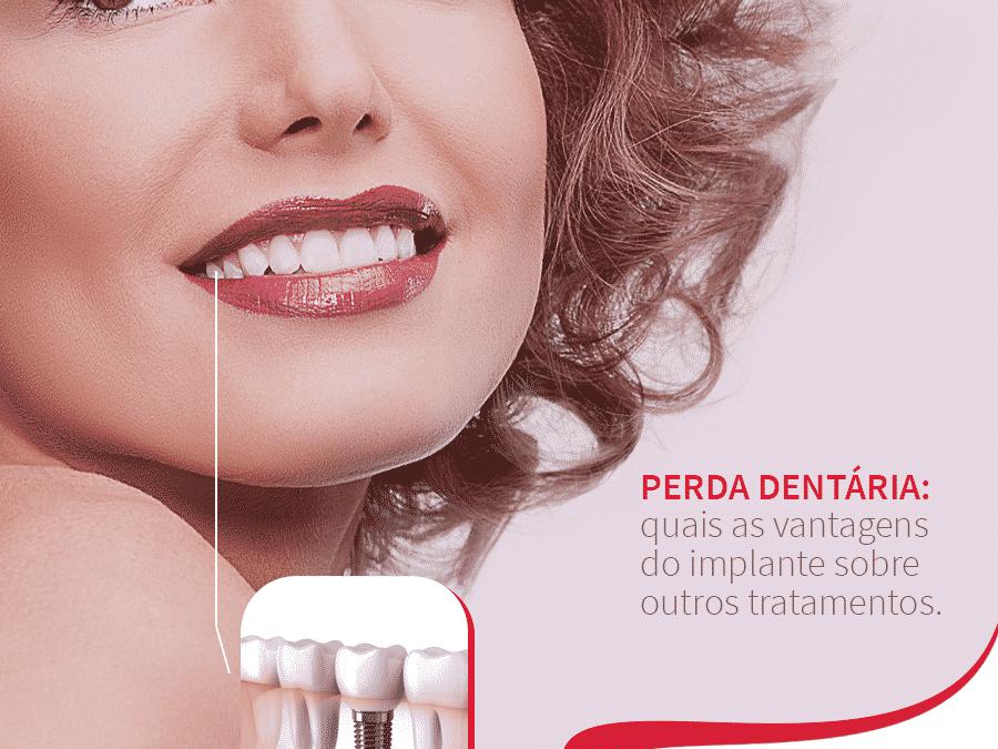 Mulher sorrindo mostrando implante dentário Postagem mídia digital Dra. Tânia Rodrigues Cliente E-clínica Marketing Dentista